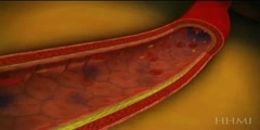 How plaques are formed in a blood vessel?