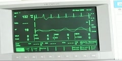 Measuring Cardiac Arrhythmia