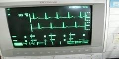 What is Cardiac Arrhythmia?