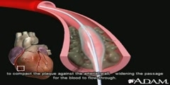 A Look at Angioplasty