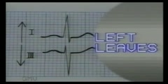ECG Reading With Axis Deviation