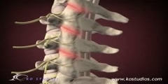 Medical animation of the cervical  facet  syndrome