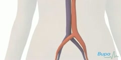 Procedure For  Coronary Angioplasty