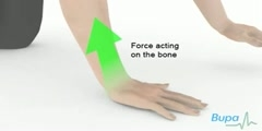 How is a wrist fracture is treated? by Bupa