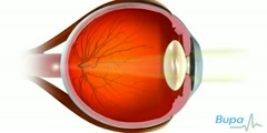 Lasik Eye Surgery Video