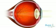 Lasik Eye Surgery Video