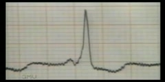 ECG Reading for WPW Syndrome
