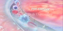 Pulsed Radio Frequency Therapy
