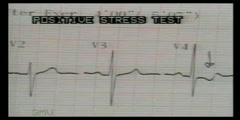 ECG reading for myocardial ischemia - Dr. Vaidya