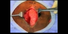Abdomen Closure
