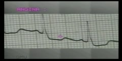 26. How To Read ECG Reading- T Wave Inversions
