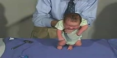 Clinical Examination of Infant by Examining Movements