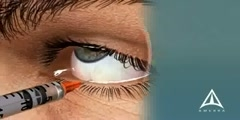 How Macular Degeneration Treatment is Performed?