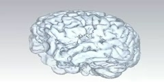 3D Scan of Human Brain Using MRI