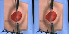 Hernia Surgery - 3d medical animation - DnaTube com