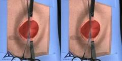 Open Hernia Surgery Video