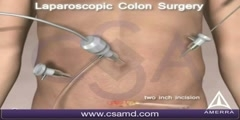 Colorectal Cancer Surgery Video