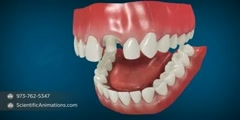 Dental Restoration - Crowns on Teeth