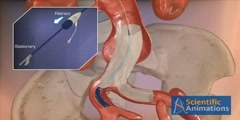 AAA Stent Training - 3d Medical Animation