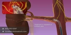 Renal Denervation Therapy