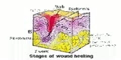Images of Wound Healing Stages