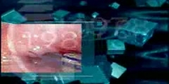 The Endoscopy Evolution