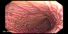 High resolution endoscopy of digestive system