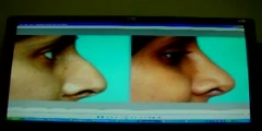 NOSE SURGERY-RHINOPLASTY