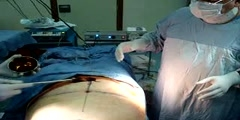 TUMMY TUCK,ABDOMINOPLASTY