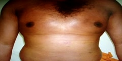 GYNECOMASTIA-LIPOSUCTION