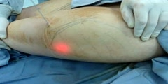 Laser liposuction procedure