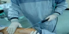 Plastic surgery in Qatar by Dr. Hussein