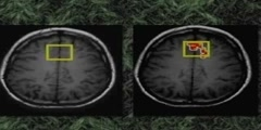 Brain Controls Pain: ScienCentral News Video