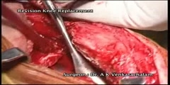 Revision knee replacement part 1, Dr.Venkatachalam