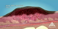 Skin Warts - 3D Medical Animation