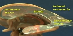Brain Stem Model - Lateral & Third Ventricles