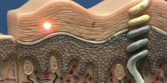 Composite Skin Model - Epidermis & Dermis