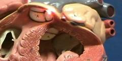 Heart Model II - Left Ventricle