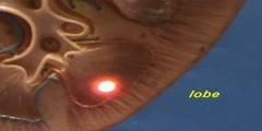 Kidney Model - Cortex & Medulla