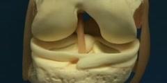 Knee Joint Model - Cruciate Ligaments & Mensici