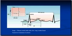 Lungs -Pulmonary Embolism