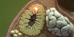 Ovary Model - Corpus Luteum & Corpus Albicans