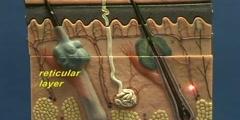 Simple Skin Model - Dermis