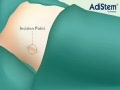 Stem cell therapy animation