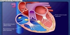 Heart's Conduction System