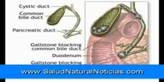 Removal of gallstone by detoxification