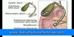 Detoxification for gallstone Removal