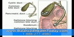 Detoxification: a natural way to getting rid of gallstone