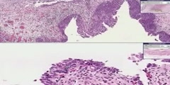 Bladder - Transitional Epithelium