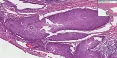 Cervix -Squamous metaplasia & carcinoma in-situ
